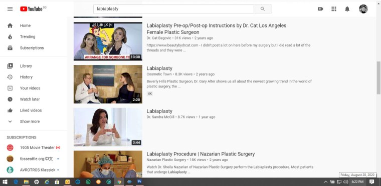 Youtube-labiaplasty-3