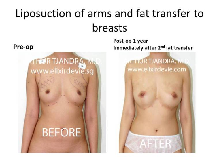 Fat transfer breasts augmentation by Dr Arthur Tjandra of Elixir de Vie