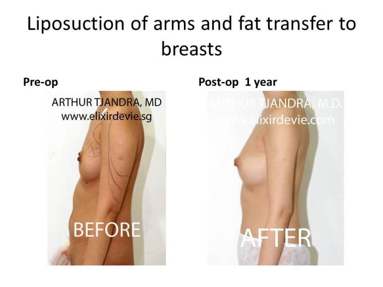 Arms liposuction by Dr Arthur Tjandra of Elixir de Vie