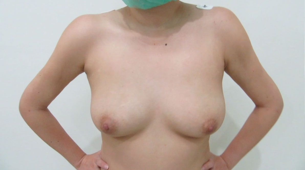 after-3D-high-definition-arms-liposuction
