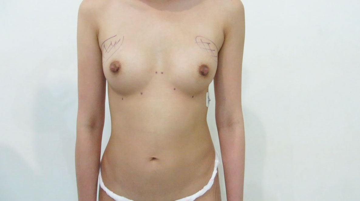 before fat transfer breasts augmentation