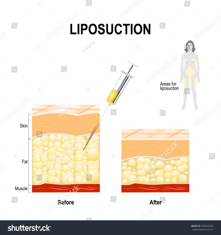 Liposuction process and areas for lipo. cosmetic surgery for remove fat from the human body. syringe with fat and the Human Skin layer before and after Liposuction