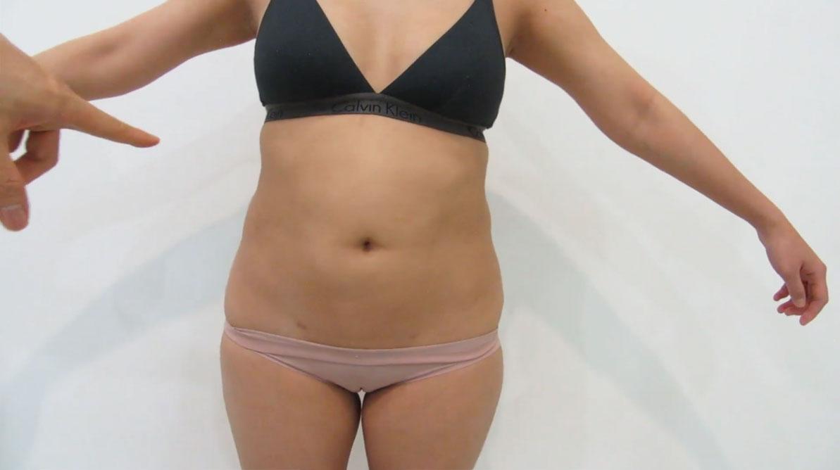 result-of-abdominal-liposuction-in-Australia