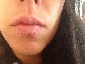 Dry lipped healed by nutritionist - Brianan Dolan