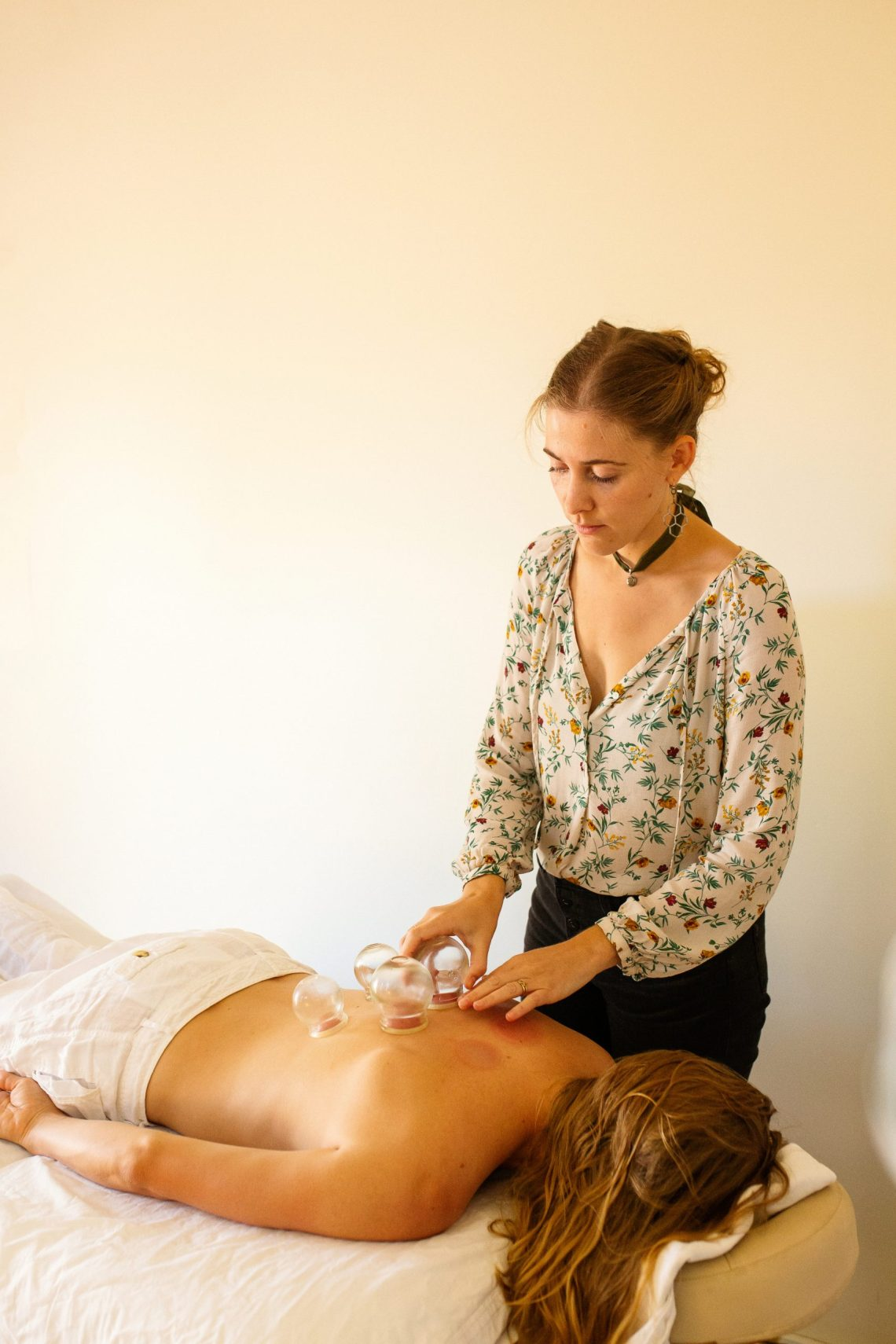 Holistic wellness clinic photography session. Healthcare professional provides cupping for Chinese medicine treatment in photography session by California photographer Ella Sophie.