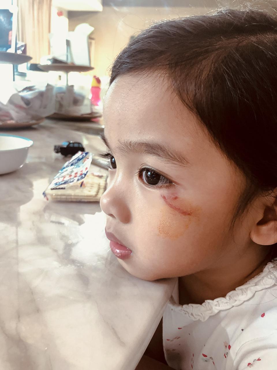 toddler injured in school