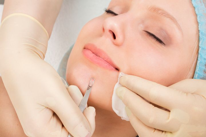 woman receiving facial extractions using extraction tool ellemes medical spa atlanta