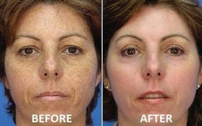 before and after laser dark spot removal atlanta medical spa ellemes