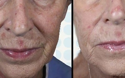 laser skin resurfacing atlanta ellemes medical spa