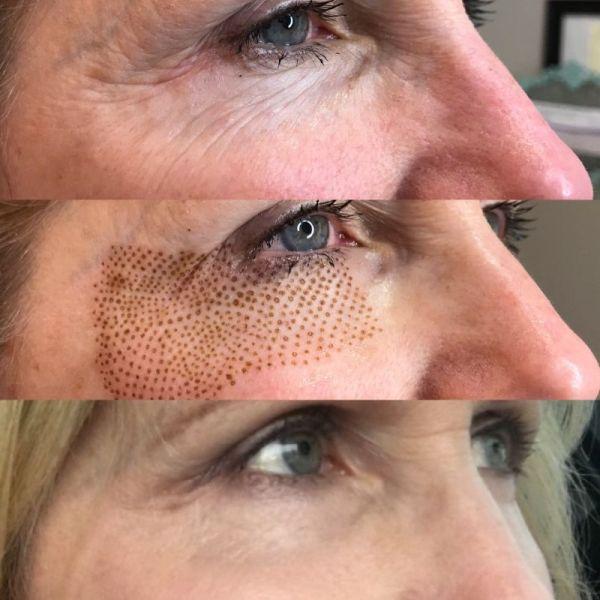 before and after plasma treatment atlanta medical spa