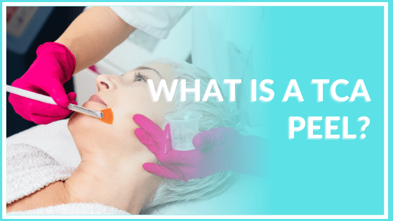 what is a tca peel atlanta medical spa