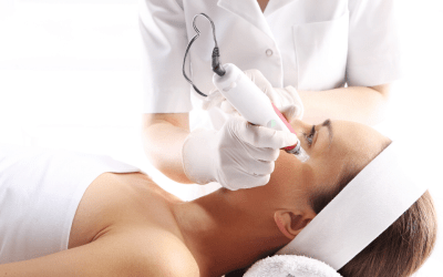 woman receiving microneedling treatment dunwoody medical spa