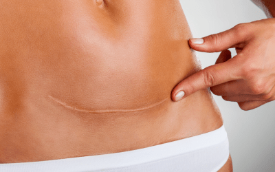woman pointing to skin scar on her stomach atlanta medical spa