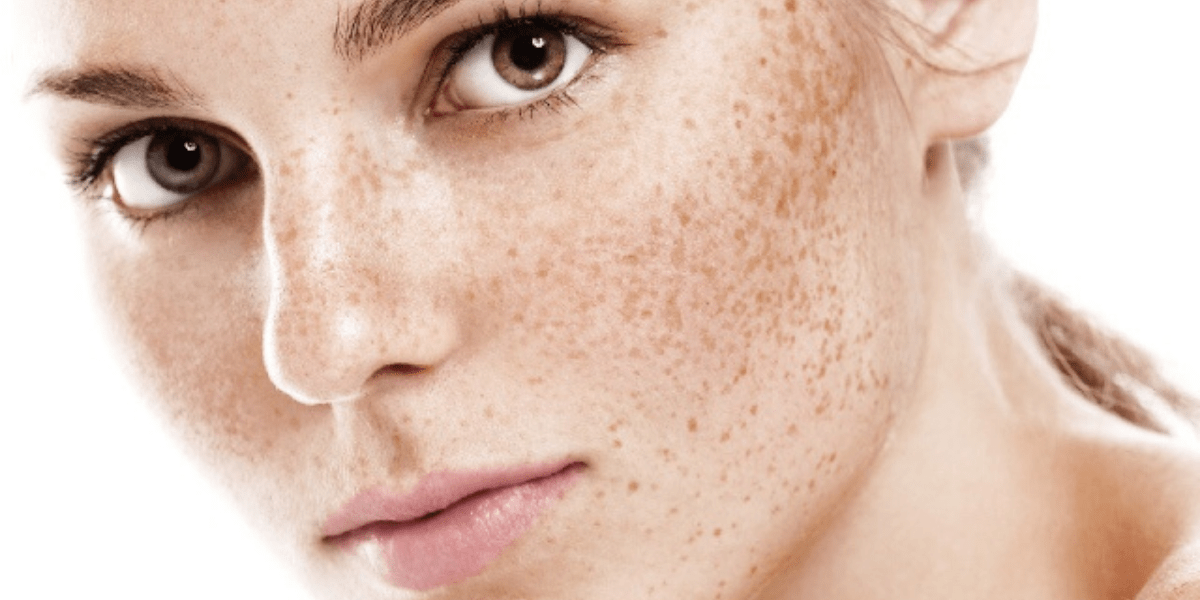 woman with freckles atlanta medical spa