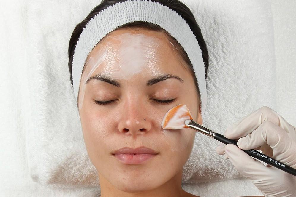 woman receiving chemical peel atlanta medical spa