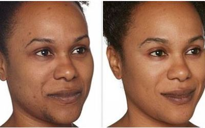 african american dark spot removal