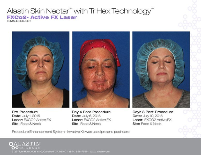 alastin skincare before and after