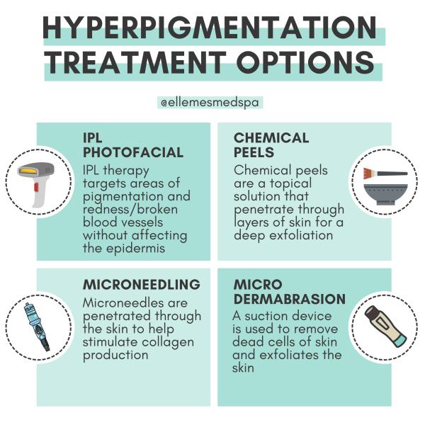 hyperpigmentation treatment options illustration