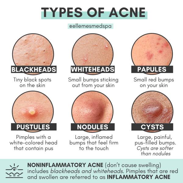 different types of acne illustration