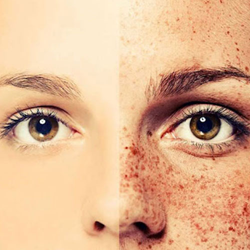 FRECKLES AND AGE-SPOTS