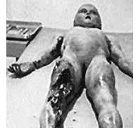 Η αυτοψία του εξωγήινου από την συντριβή UFO στο Roswell.