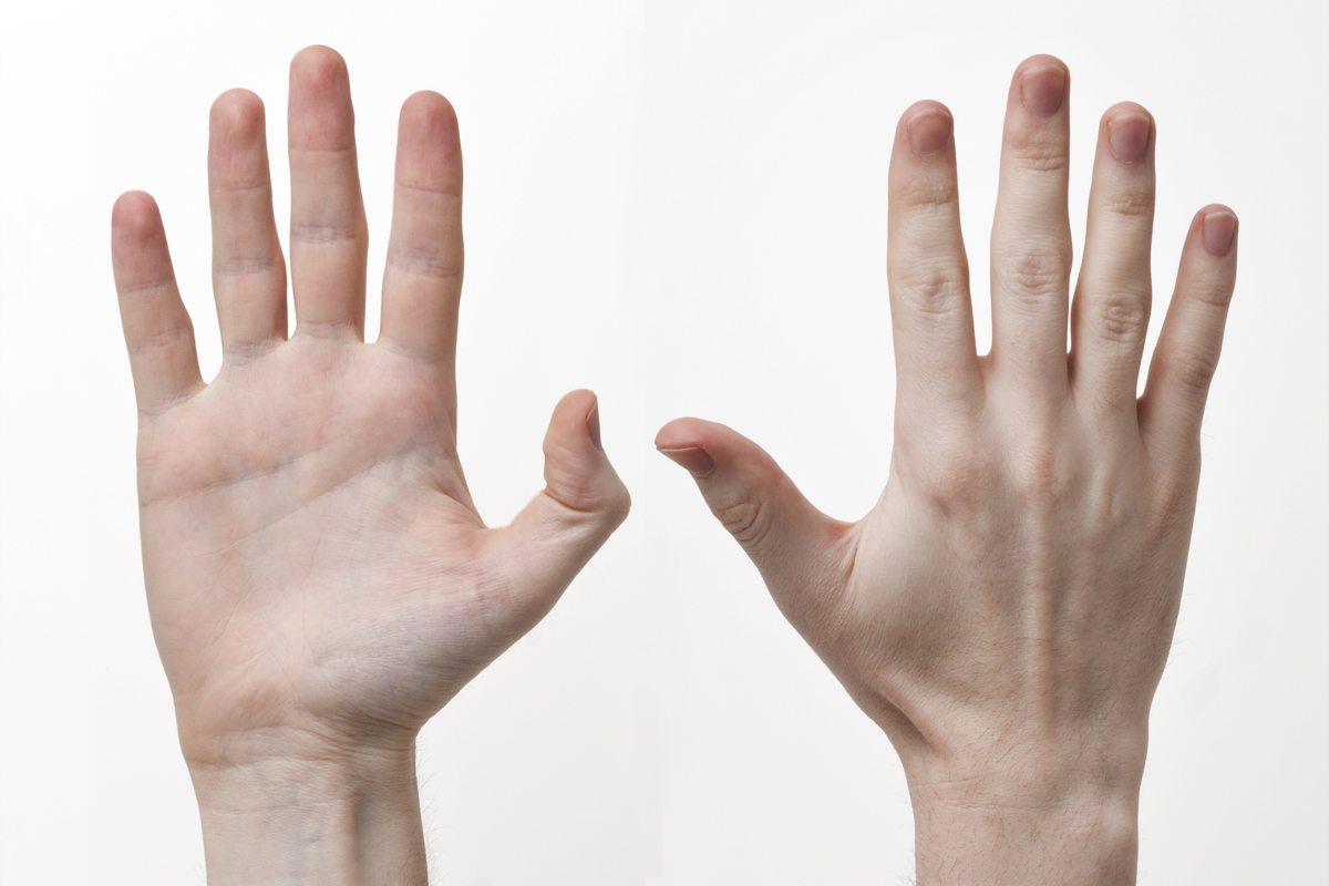 """Human-Hands-Front-Back"" by Evan-Amos - Own work. Licensed under CC BY-SA 3.0 via Wikimedia Commons - http://commons.wikimedia.org/wiki/File:Human-Hands-Front-Back.jpg#/media/File:Human-Hands-Front-Back.jpg"