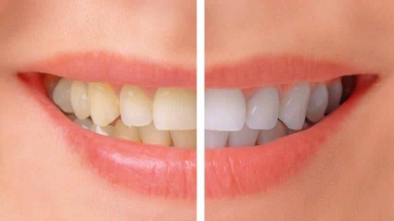 تصبغات الاسنان
