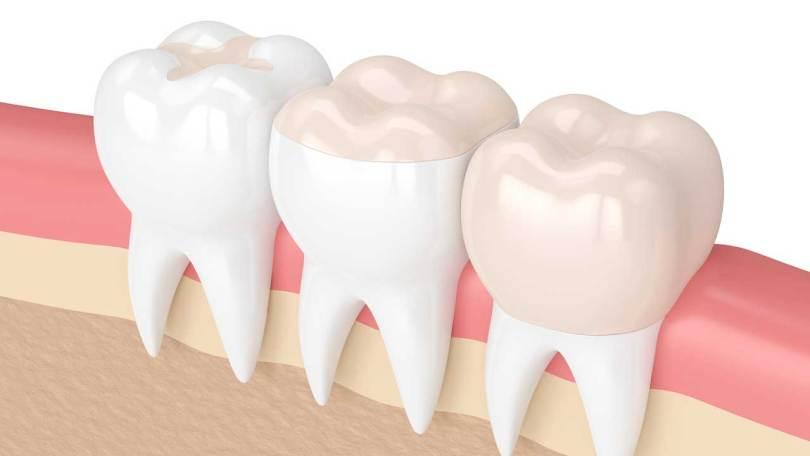 تركيبات الاسنان