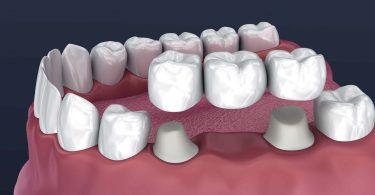 اسعار تركيبات الاسنان