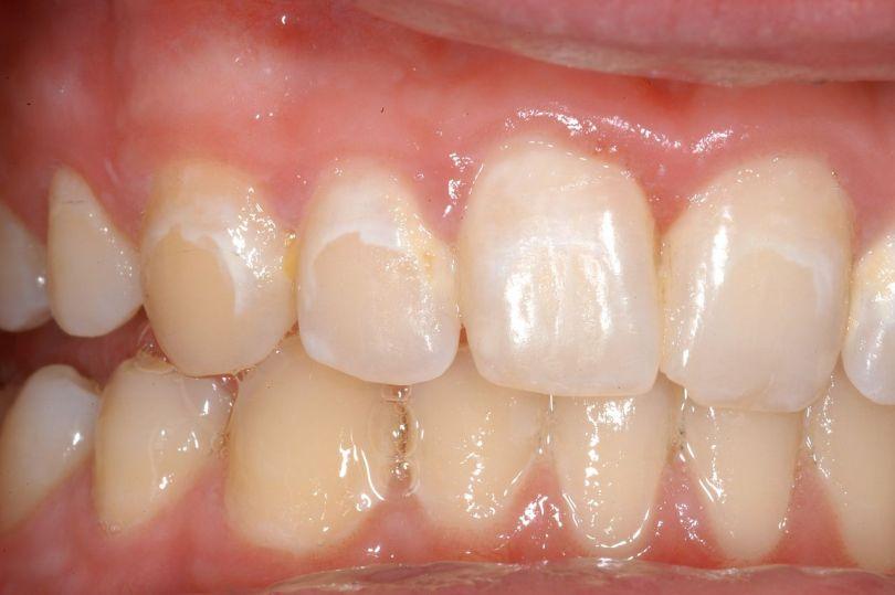 بداية تسوس الاسنان