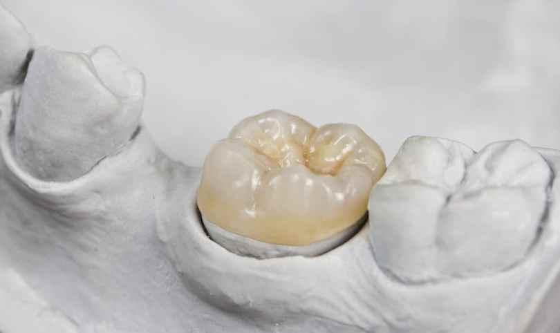 اضرار تركيب الاسنان