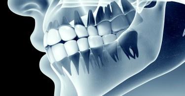 كم سعر اشعة الاسنان