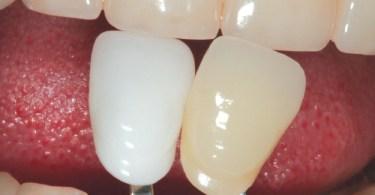 عدسات الاسنان اللاصقه