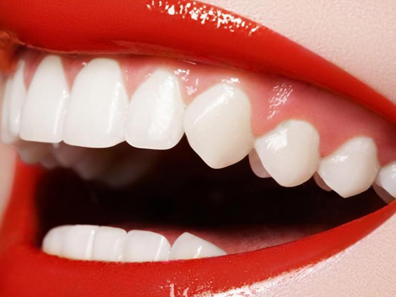 انواع تبييض الاسنان وأسعارها