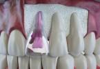 اسباب تاكل الاسنان من الجذور