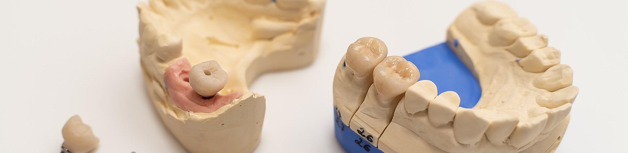 افضل دكتور تركيبات اسنان في جدة
