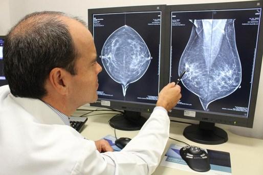 Foto-1-La-mamografia-digital-tiene-una-mejor-sensibilidad-para-deteccion-lesiones-sospechosas