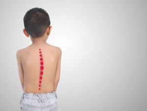 kid with scoliosis