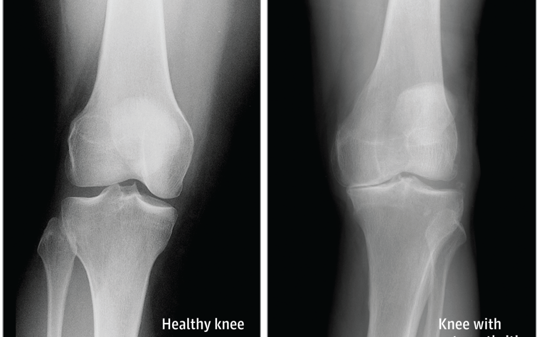 How Arthritis Can Affect the Knee