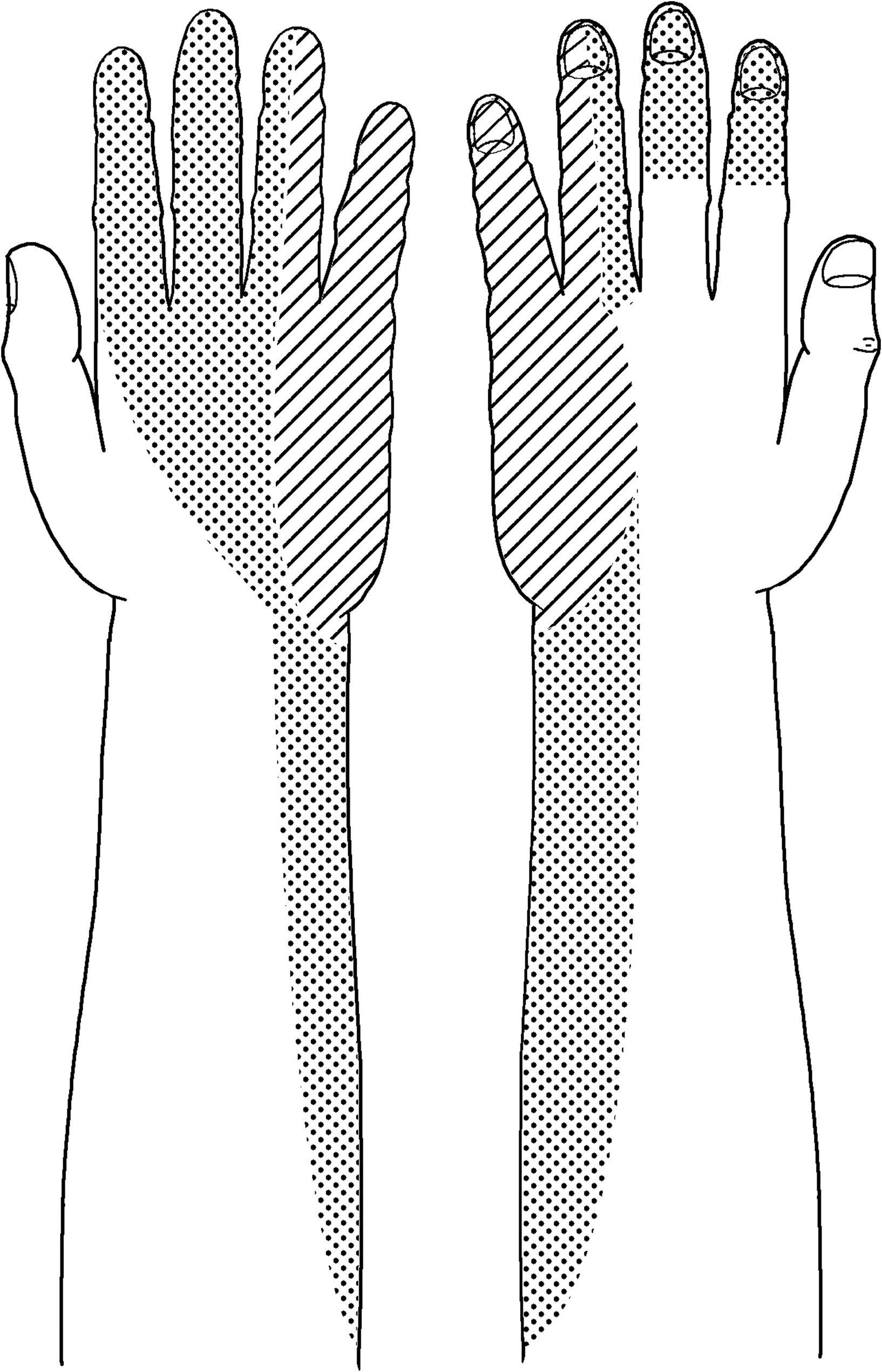 Transfer Of The Radial Branch Of The Superficial Radial