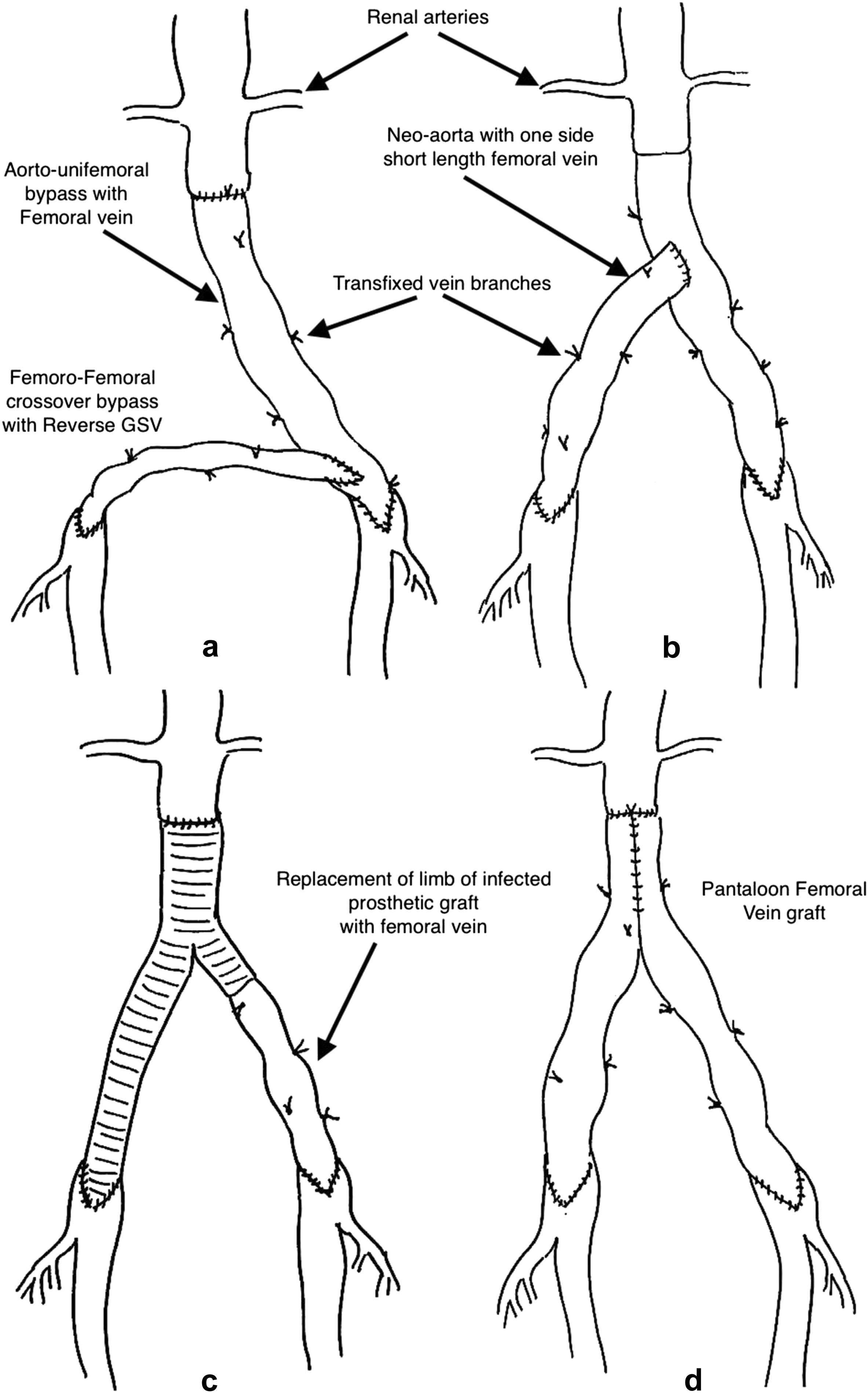 Pantaloon Femoral Vein Graft As Neoaorta In Infected