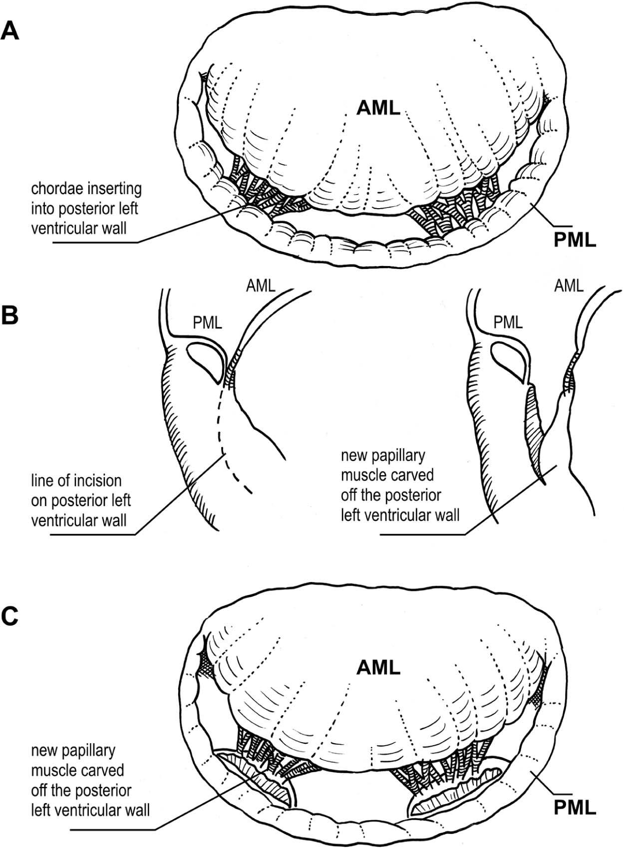 Repair For Congenital Mitral Valve Stenosis