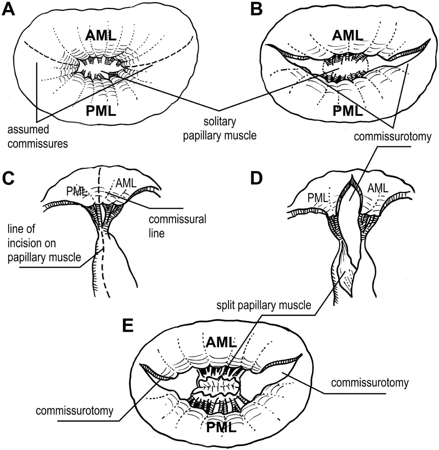 References In Repair For Congenital Mitral Valve Stenosis