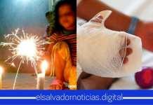 Policía Nacional Civil reporta una disminución de niños quemados con pólvora