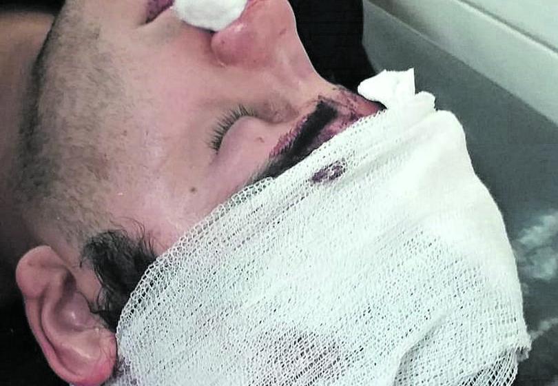 Un joven Denuncia que le fracturaron el cráneo con una botella dentro de un boliche de Junin al 100