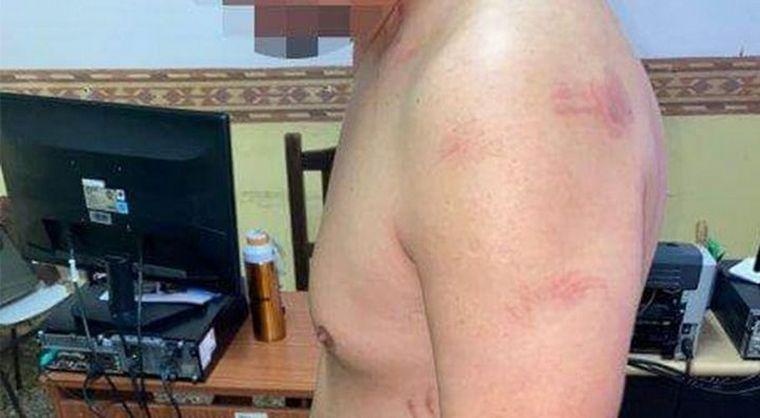 Una joven taekwondista le dio una paliza a su novio por infiel