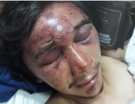 Asaltan a albañil y lo golpean brutalmente con fierros y una maza, ocurrio en Famailla