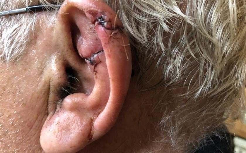 Por temor a infectarse de coronavirus y para no ir al hospital, se hizo coser la oreja por un veterinario