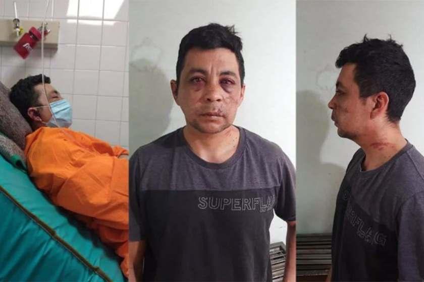Enfermero recuperado de coronavirus regreso a trabajar y fue golpeado por sus vecinos