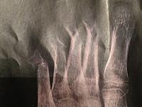 Der Fuss mit den 4 Gebrochenen Knochen, nach 4 Wochen